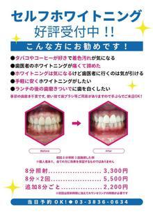 他メニューに追加で歯のセルフホワイトニング1000円引き♪