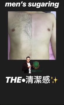 男性のブラジリアンワックス・シュガーリングの脱毛について