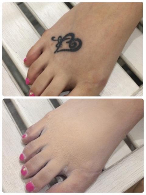 足の甲タトゥーカバー施術例