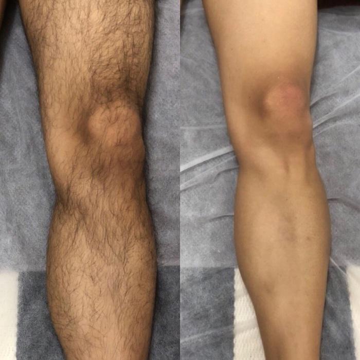 男性の足の脱毛 ワックスより肌に優しいシュガーリングビフォーアフター
