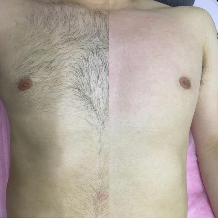 男性ボディシュガーリングビフォーアフター胸毛